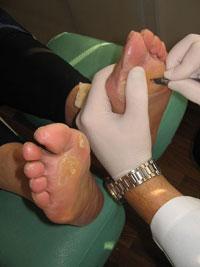 Руки & ноги.  Профессия - подолог