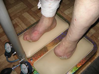 Коррекция стоп и осанки при ампутациях на стопах.